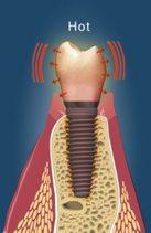 Dental Implant Care Dream Dental Implant Center, Utah