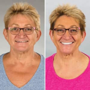 all on 4 surgery before and after