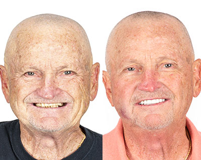 Before and After All on 4 Dental Implants